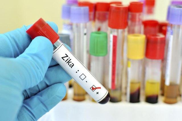 Zika Virus Outbreak in Rajasthan as 22 Test Positive