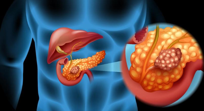 Extra weight may raise risk for Pancreatic Cancer