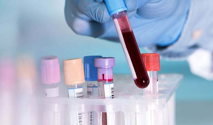 Blood test may help guide Breast Cancer treatment