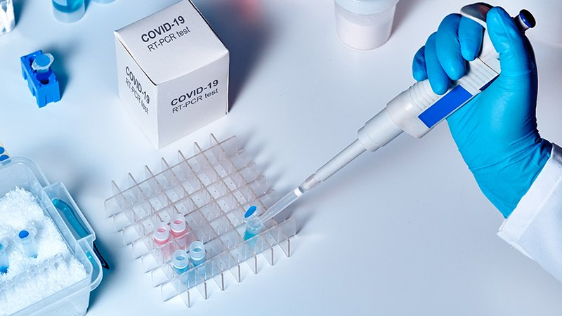 113 samples test negative for coronavirus in State-2